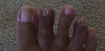 Fungal infection toenail