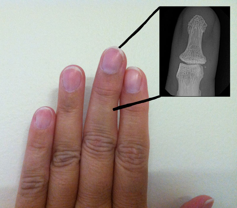 Finger X-Ray