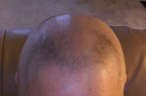Hair growing back after stem cell transplant