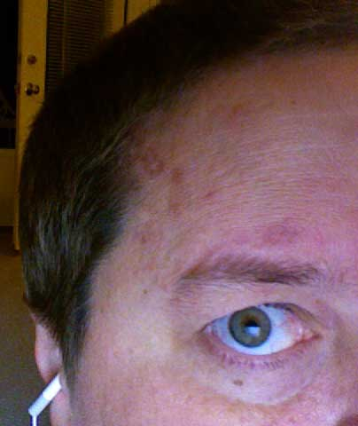 The shingles on my head - getting better