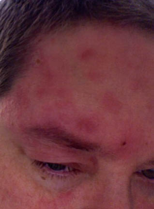 Shingles on the left side of my face